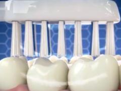 Чистка зубов в домашних условиях: могут ли новые аппараты заменить стоматолога?