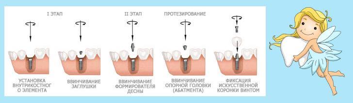 процедура имплантации зубов