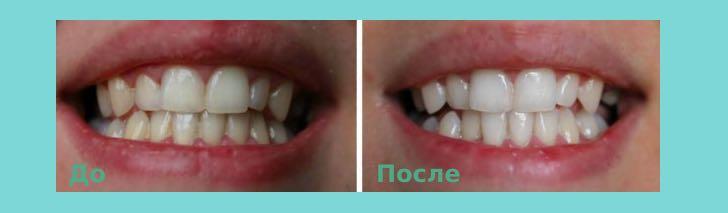 зубной порошок: до и после