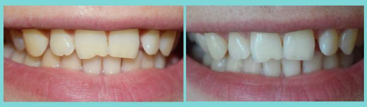 отбеливание зубов кремом: до и после