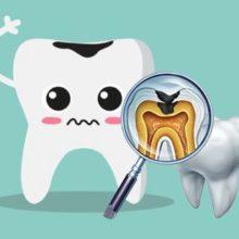 Профилактика кариеса зубов: 5 простых советов