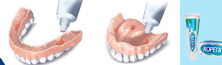 крем корега для зубных протезов