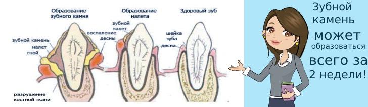 этапы формирования зубного камня