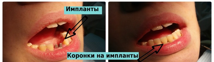 импланты и коронки