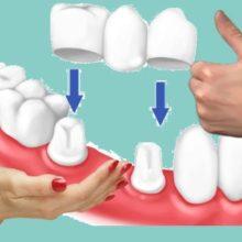 Какие коронки на зубы лучше: выбор экспертов