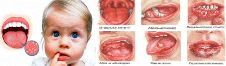 виды стоматита у детей