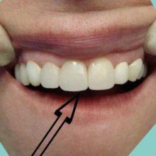 Какие коронки ставят на передние зубы?