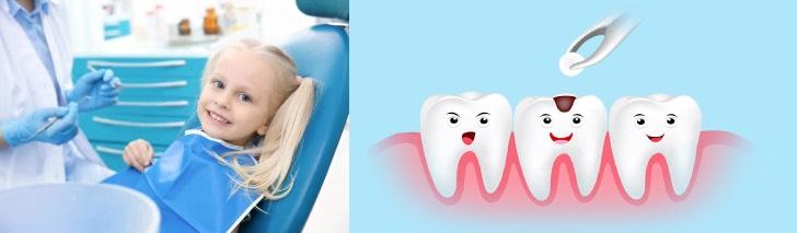 пломба на молочный зуб